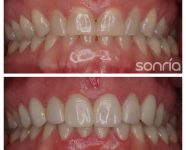 1.1.3 – ESTETICA DENTAL – CARILLAS CERAMICAS – FRENTE ANTERIOR