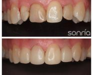 1.2.1 ESTETICA DENTAL COMPOSITES ESTETICOS FRENTE-ANTERIOR
