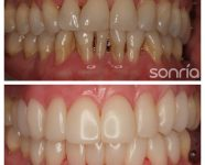 1.2.2 ESTETICA DENTAL COMPOSITES ESTETICOS ARCADA SUPERIOR E INFERIOR