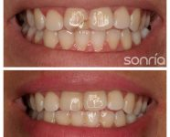 1.2.4 ESTETICA DENTAL COMPOSITES ESTETICOS CAMBIO RESTAURACION ANTIGUA EN INCISIVO SUPERIOR DERECHO