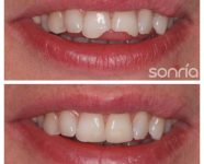 1.2.5 ESTETICA DENTAL COMPOSITES ESTETICOS BORDE INCISAL FRACTURADO
