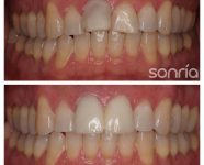 1.3.8 ESTETICA DENTAL CORONAS CERAMICAS FRENTE ANTERIOR INCISIVOS CENTRALES SUPERIORES