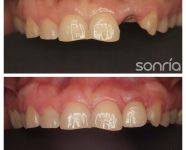 2.1.2 IMPLANTES UNITARIO INCISVO SUPERIOR