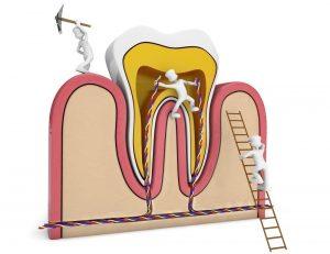 retratamiento endodontico